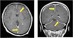 低髄液圧状態のMRI